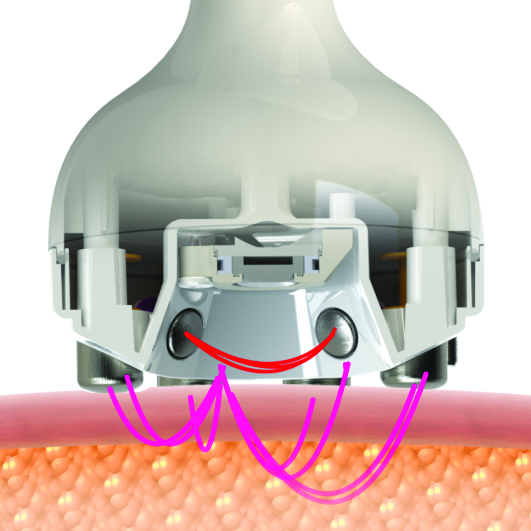How radiofrequency works